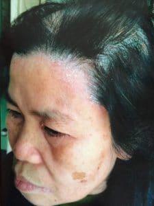 khach hang danh gia nha thuoc dong y duc thinh duong 1 225x300 - Khách hàng đánh giá về nhà thuốc Đông y gia truyền Đức Thịnh Đường