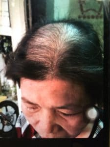 khach hang danh gia nha thuoc dong y duc thinh duong 3PNG 225x300 - Khách hàng đánh giá về nhà thuốc Đông y gia truyền Đức Thịnh Đường
