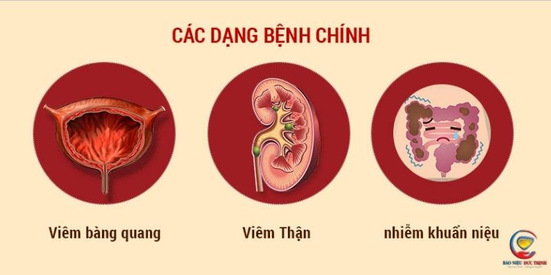baonieuducthinhcotacdunggivoibenhveduongtietnieu 3 - Bảo Niệu Đức Thịnh có tác dụng gì với các bệnh về đường tiết niệu?