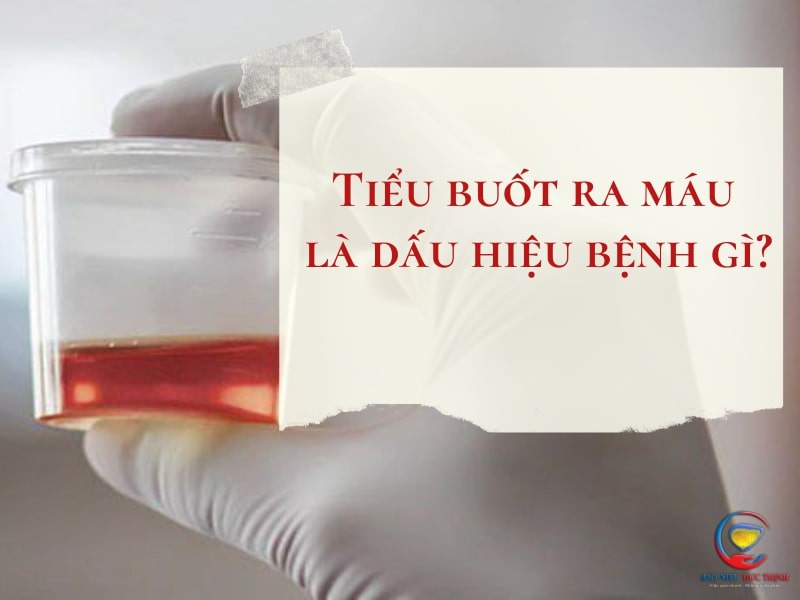 Tieu buot ra mau la dau hieu benh gi 1 - (HỎI ĐÁP) Tiểu buốt ra máu là dấu hiệu bệnh gì? Có nguy hiểm không?