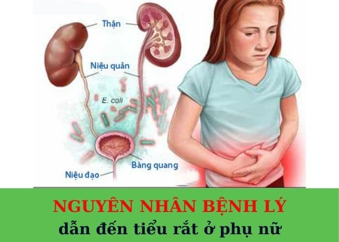 Nguyen nhan benh ly - Cách chữa tiểu rắt ở phụ nữ hiệu quả nên thử ngay
