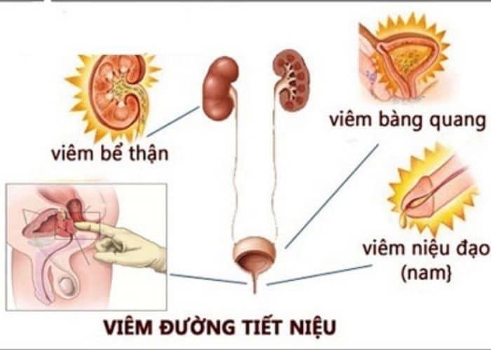 Thiet ke khong ten 1 - [ BẠN CÓ BIẾT] Nguyên nhân gây viêm đường tiết niệu ở nữ giới phổ biến