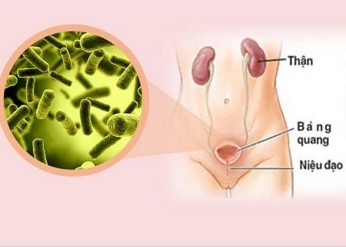 Thiet ke khong ten 3 - [ BẠN CÓ BIẾT] Nguyên nhân gây viêm đường tiết niệu ở nữ giới phổ biến