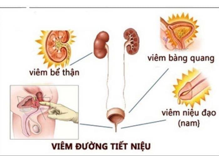 luu y dieu tri viem duong tiet nieu - Hướng dẫn cách điều trị viêm đường tiết niệu mãn tính chi tiết từ A - Z