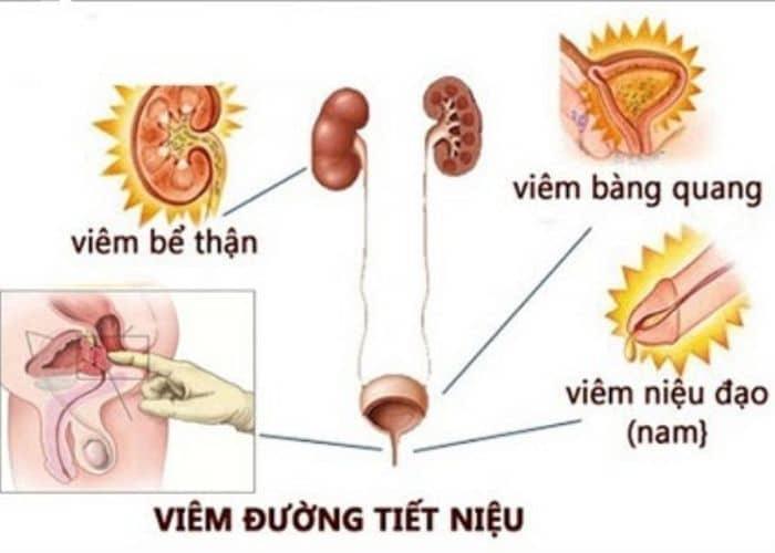 nguyen nhan benh ly viem duong tiet nieu nam gioi - [ HỎI - ĐÁP] Nguyên nhân gây viêm đường tiết niệu ở nam giới là gì?