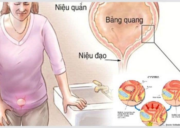 nguyen nhan viem duong tiet nieu - Cảnh giác trước biến chứng của viêm đường tiết niệu nếu không muốn sức khỏe gặp vấn đề