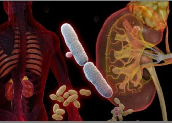 nhiem trung nieu tren - Cảnh giác trước biến chứng của viêm đường tiết niệu nếu không muốn sức khỏe gặp vấn đề