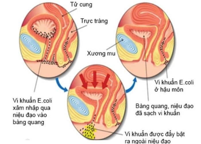 viem duong tiet nieu va yeu to gay benh - [ GIẢI ĐÁP] Viêm đường tiết niệu bị đau lưng phải làm sao?