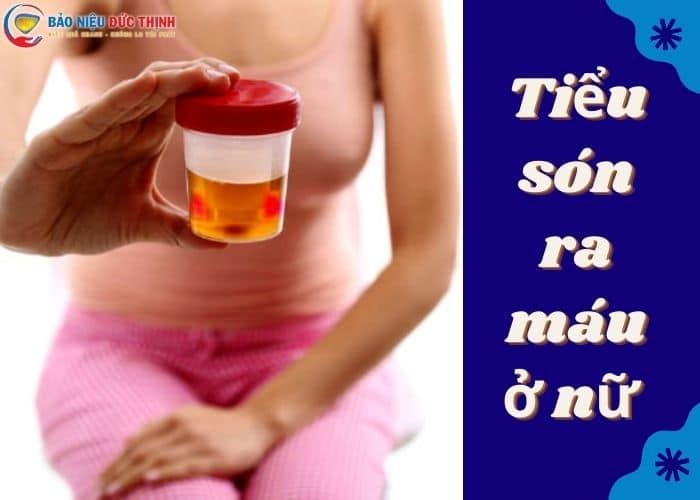 1. tieu son ra mau o nu la benh gi - Tiểu són ra máu ở nữ. Cảnh giác bệnh lý nguy hiểm không thể coi thường.