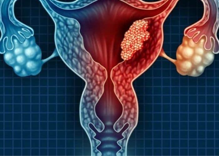 10.di tieu dau bung duoi ben trai do u nang buong trung - TÌM HIỂU NGAY hiện tượng đi tiểu xong bị đau bụng dưới ở nữ