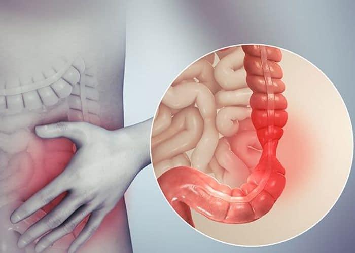 2. di tieu buot dau bung duoi phai do viem dai trang - TÌM HIỂU NGAY hiện tượng đi tiểu xong bị đau bụng dưới ở nữ