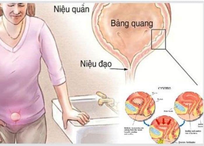 2. tieu son ra mau o nu do viem tiet nieu - Tiểu són ra máu ở nữ. Cảnh giác bệnh lý nguy hiểm không thể coi thường.