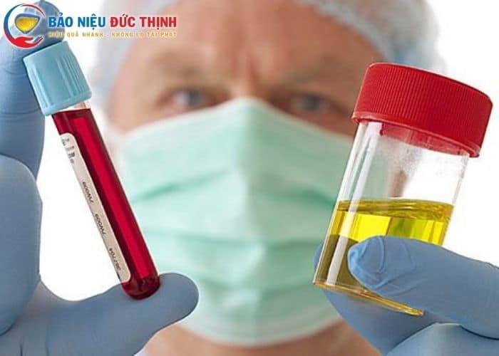 3. nguyen nhan sinh ly gay Tieu ra mau - Chữa tiểu ra máu bằng thuốc nam - Giải pháp hoàn hảo cho bệnh lý đường tiểu