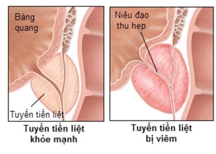 5.viem tien liet gay Tieu ra mau - Chữa tiểu ra máu bằng thuốc nam - Giải pháp hoàn hảo cho bệnh lý đường tiểu