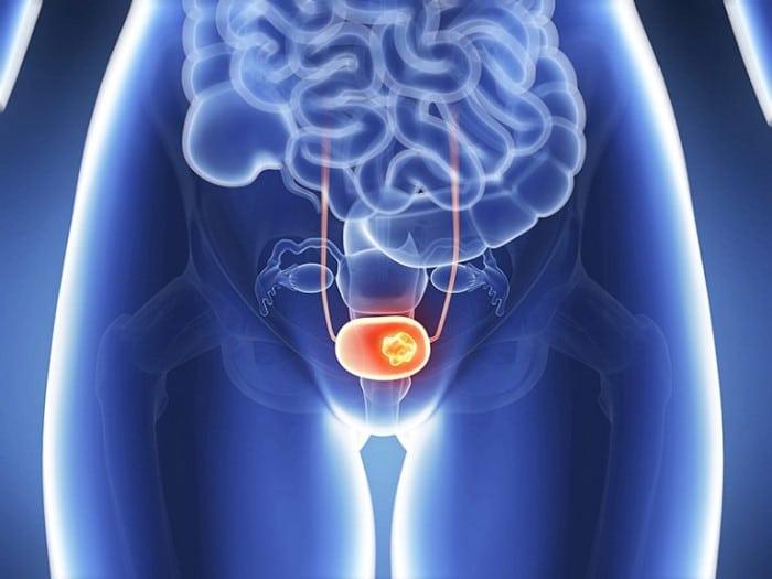 bang quang tang hoat la gi 5 - Tổng quan hội chứng bàng quang tăng hoạt OAB là gì và cách điều trị