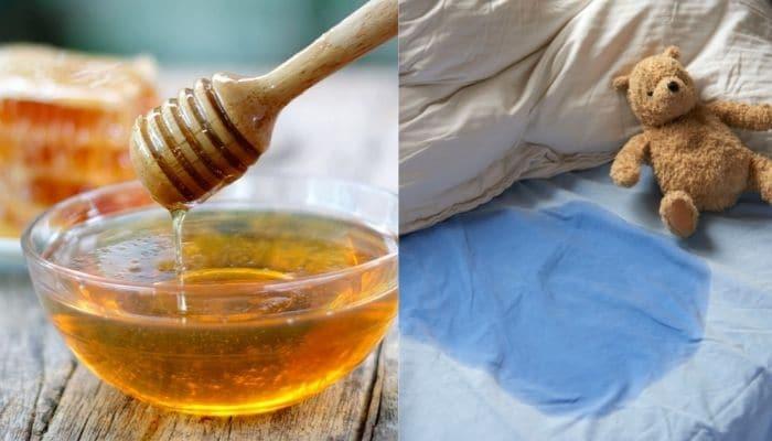 chua dai dam bang mat ong - Bác sĩ tiết lộ bí quyết chữa đái dầm bằng mật ong cực hay