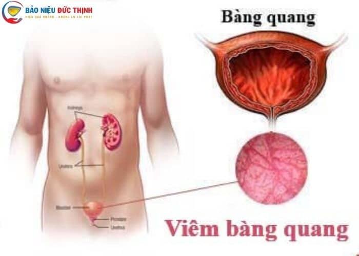 di tieu ra mau do benh bang quang - [ HỎI - ĐÁP] Đi tiểu buốt ra máu tươi là bệnh gì? Nguy hiểm không?