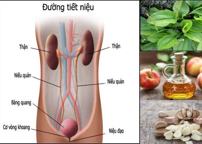 loi ich chua viem tiet nieu bang thuoc nam - Điểm mặt 4 cách chữa viêm tiết niệu bằng thuốc nam hiệu quả bất ngờ