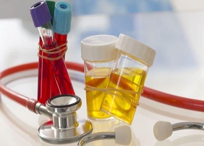 luu y chua tieu buot ra mau hong - Tiểu buốt ra máu hồng: Nguyên nhân, cách chữa và lưu ý khi điều trị