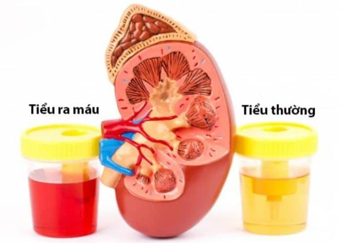 nguyen nhan tieu buot ra mau hong - Tiểu buốt ra máu hồng: Nguyên nhân, cách chữa và lưu ý khi điều trị