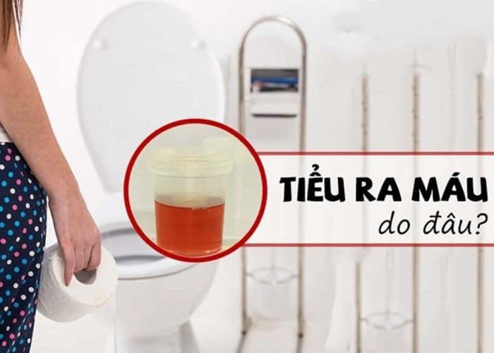 nguyen nhan tieu buot ra mau - Top 5+ Cách chữa tiểu buốt ra máu tại nhà nhanh và hiệu quả nhất hiện nay