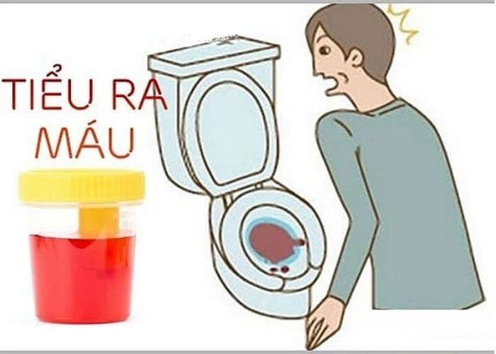 nguyen nhan tieu ra mau do chan thuong - Bật mí Top các bài thuốc trị tiểu ra máu hiệu quả bất ngờ