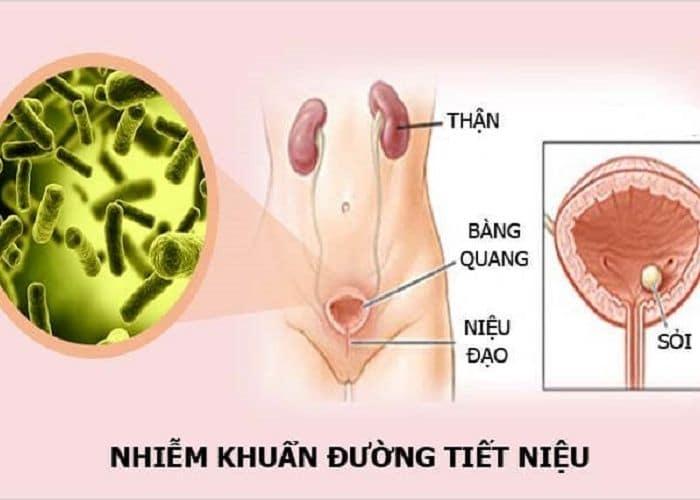 nhiem trung tiet nieu gay tieu buot ra mau mang thai - Cảnh báo hiện tượng tiểu buốt ra máu khi mang thai. Chớ coi thường!