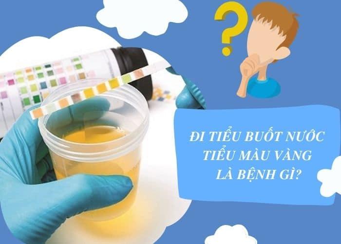 tieu buot nuoc tieu vang benh gi - [ GIẢI - ĐÁP] Đi tiểu buốt nước tiểu màu vàng đậm là bệnh gì? Làm sao để chữa?