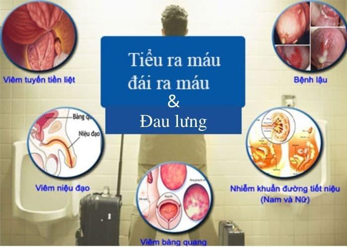tieu ra mau dau lung benh gi - Tiểu ra máu và đau lưng cảnh báo bệnh gì? Làm thế nào để chữa?
