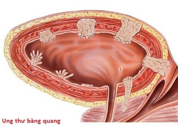 ung thu bang quang gay tieu buot ra mau mang thai - Cảnh báo hiện tượng tiểu buốt ra máu khi mang thai. Chớ coi thường!