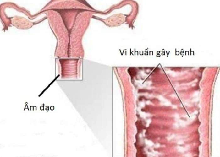 viem am dao gay tieu buot ra mau mang thai - Cảnh báo hiện tượng tiểu buốt ra máu khi mang thai. Chớ coi thường!