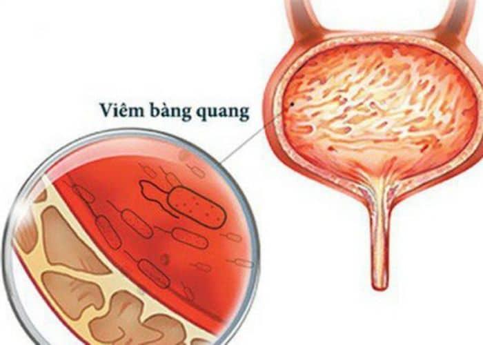 viem bang quang gay tieu buot ra mau 1 - Top 5+ Cách chữa tiểu buốt ra máu tại nhà nhanh và hiệu quả nhất hiện nay