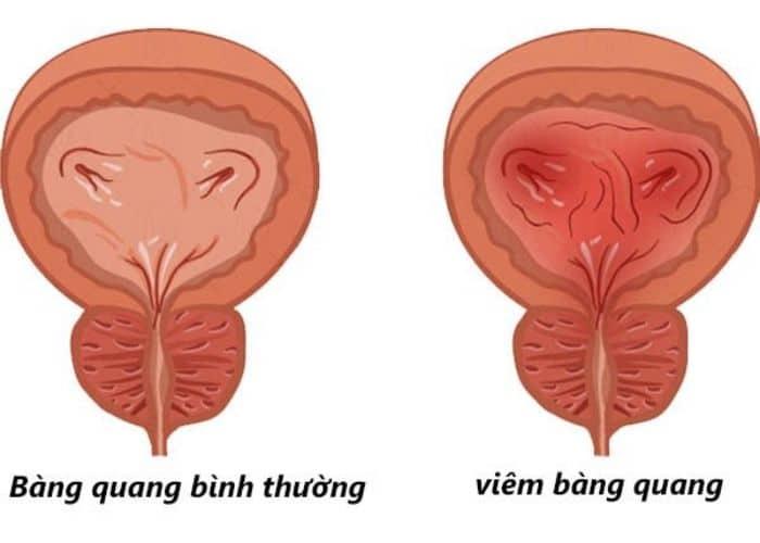 viem bang quang gay tieu buot ra mau o nam gioi - [ GIẢI ĐÁP] Bật mí cách điều trị tiểu buốt ra máu ở nam giới hiệu quả