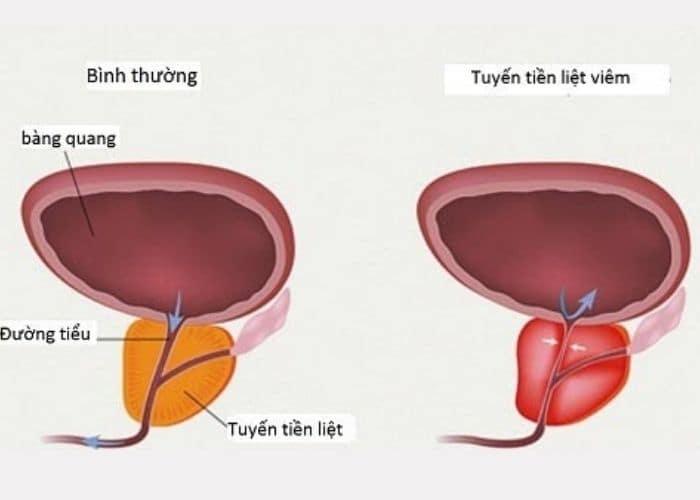 viem tien liet gay tieu buot ra mau o nam gioi - [ GIẢI ĐÁP] Bật mí cách điều trị tiểu buốt ra máu ở nam giới hiệu quả