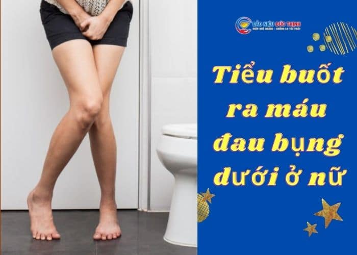 1. tieu buot ra mau dau bung duoi nu - [ CẢNH BÁO] Tiểu buốt ra máu đau bụng dưới ở nữ là bệnh gì?