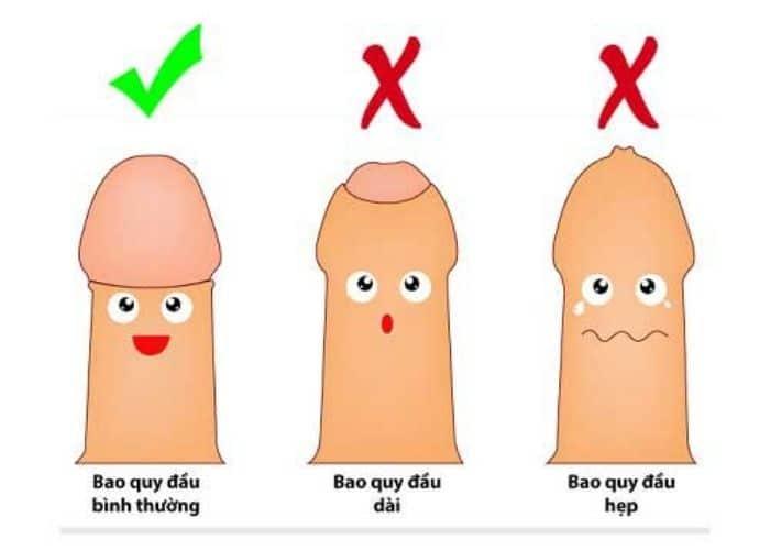4.di tieu buot va ngua o nam gioi do viem bao quy dau - [ HỎI - ĐÁP] Đi tiểu buốt và ngứa ở nam giới là bệnh gì? Nguyên nhân do đâu?
