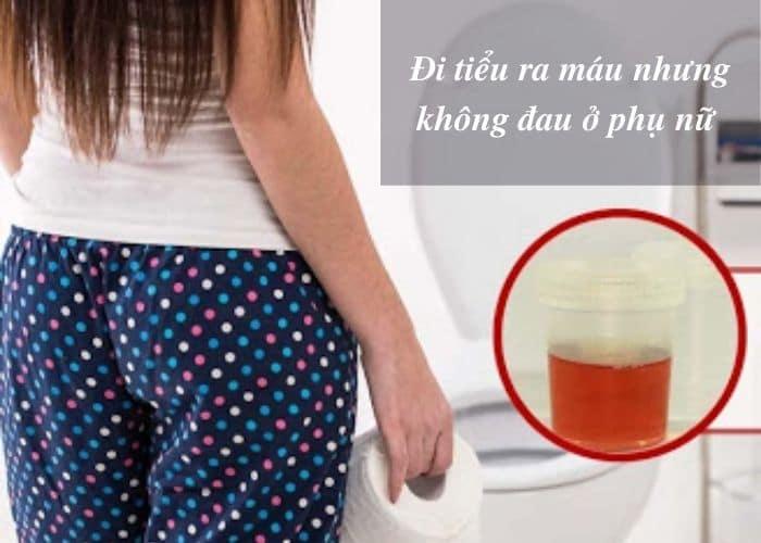 Di tieu ra mau nhung khong dau o phu nu - Hiện tượng đi tiểu ra máu nhưng không đau ở phụ nữ có nguy hiểm không?