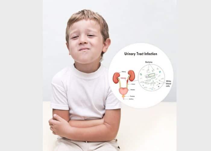 bi tieu tre nho viem tiet nieu - Bí tiểu ở trẻ em: Nguyên nhân, triệu chứng và cách điều trị hiệu quả