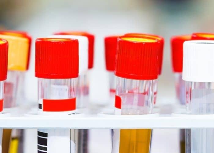 cay nuoc tieu - Nguyên nhân - Cách điều trị Nhiễm khuẩn hệ tiết niệu không đặc hiệu an toàn và hiệu qua nhất