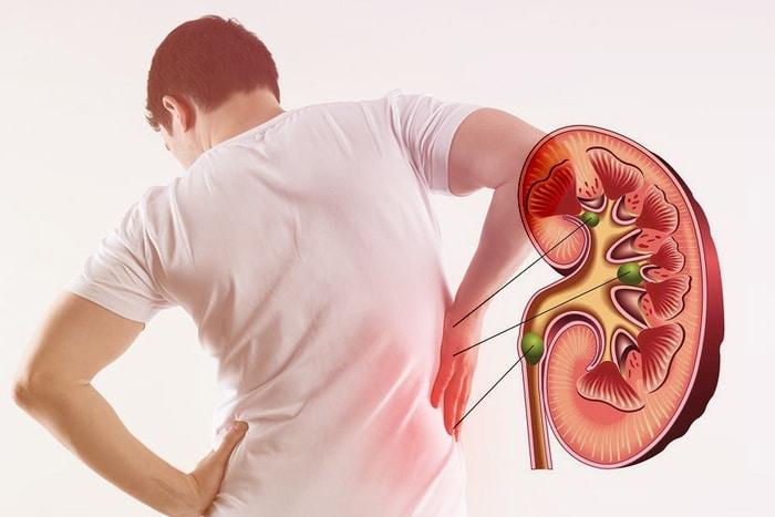 dau lung va tieu dem 3 - Những sự thật về chứng đau lưng và tiểu đêm có thể bạn chưa bao giờ biết