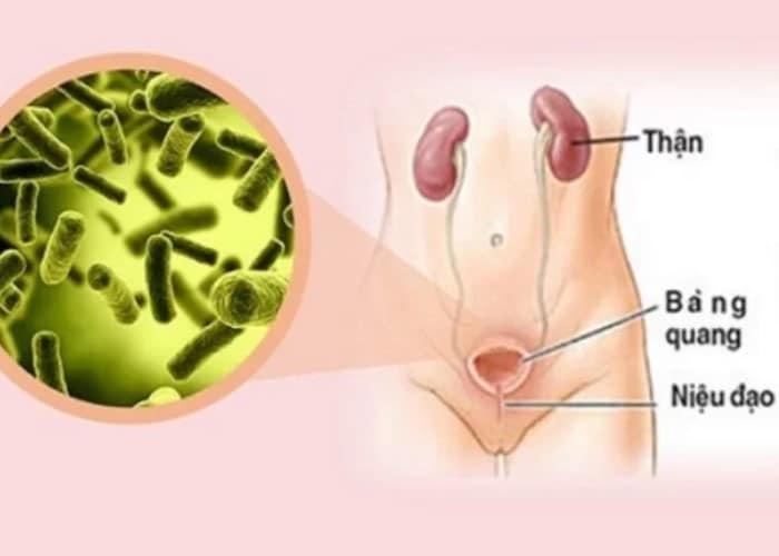 di tieu kho phai ran 8 - Hiểu rõ về chứng đi tiểu khó phải rặn và biện pháp điều trị hiệu quả nhất