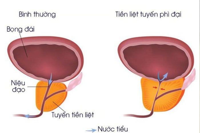 di tieu nho giot la gi 2 - Đi tiểu nhỏ giọt bệnh gì? Bật mí những bài thuốc điều trị hiệu quả