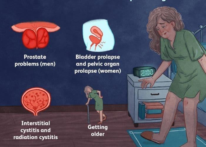 nguyen nhan than yeu di tieu nhieu - Bật mí cách chữa thận yếu đi tiểu nhiều lần hiệu quả, an toàn