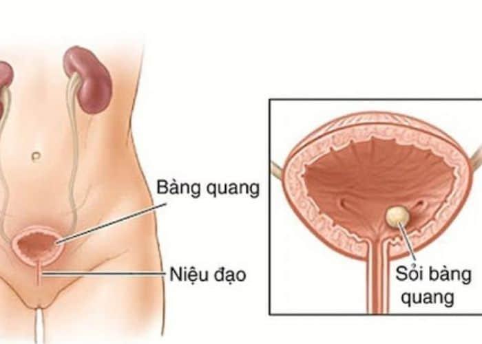 nhiem khuan he tiet nieu o nu - Nguyên nhân - Cách điều trị Nhiễm khuẩn hệ tiết niệu không đặc hiệu an toàn và hiệu qua nhất