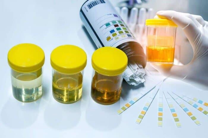 nuoc tieu co albumin la gi 11 - Bạn có biết nước tiểu có albumin là gì? Albumin trong nước tiểu cao nguy hiểm không?