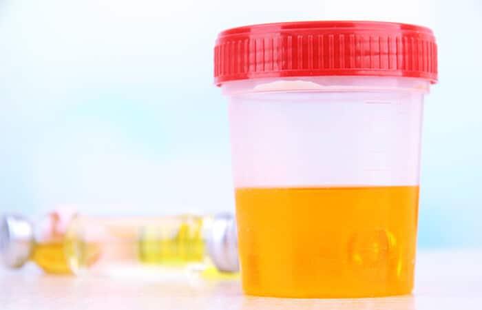 nuoc tieu co mau vang tuoi 5 - Nước tiểu có màu vàng tươi là biểu hiện của bệnh gì? Có nguy hiểm không?