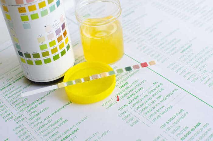 nuoc tieu co mau vang tuoi - Nước tiểu có màu vàng tươi là biểu hiện của bệnh gì? Có nguy hiểm không?