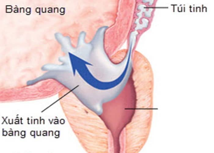 nuoc tieu duc nhu nuoc vo gao 3 - Nước tiểu đục như nước vo gạo là bệnh gì và 9 căn bệnh bạn có thể mắc phải