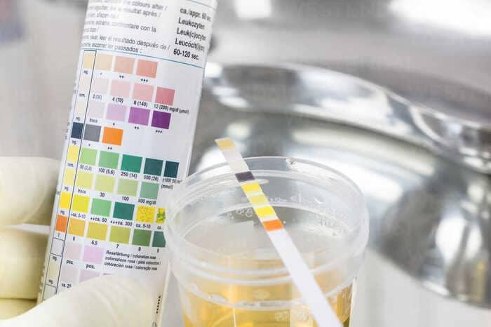 ph nuoc tieu - Độ pH nước tiểu bình thường là bao nhiêu? pH nước tiểu cao có sao không?