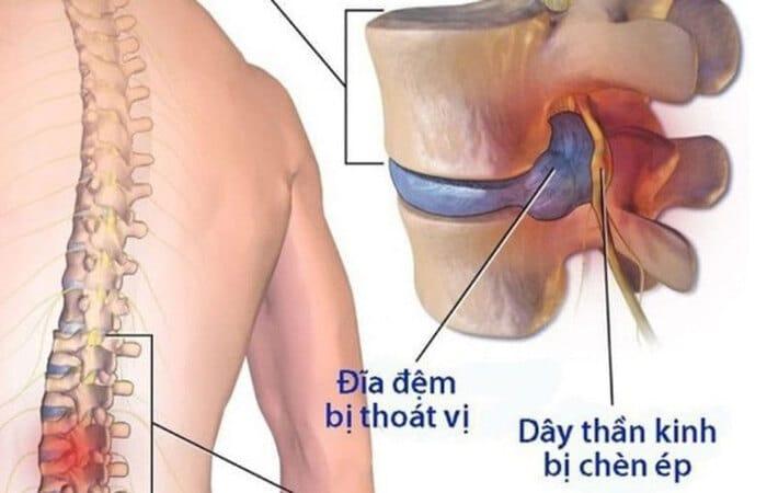 roi loan than kinh bang quang 6 - Rối loạn thần kinh bàng quang: Nguyên nhân, biến chứng và cách chữa trị